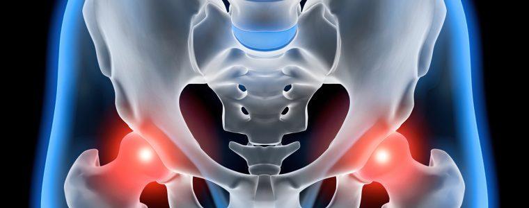 Mitos e verdades sobre artrose no quadril