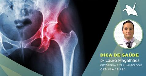 O que é a osteonecrose na cabeça do fêmur e quais os principais fatores de risco?